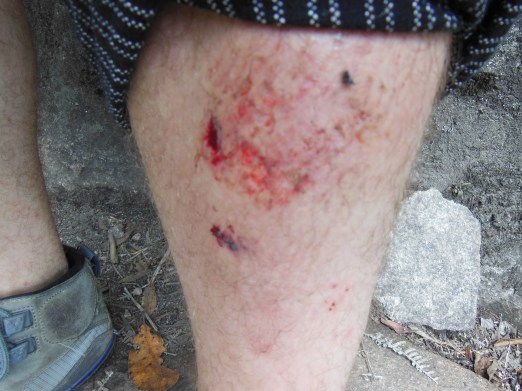 The cost of climbing Huayna Picchu too swiftly and not securely enough :)