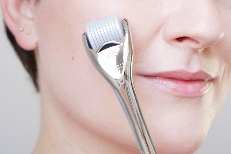microneedling swiss clinic 7 - Mijn ervaring met microneedling