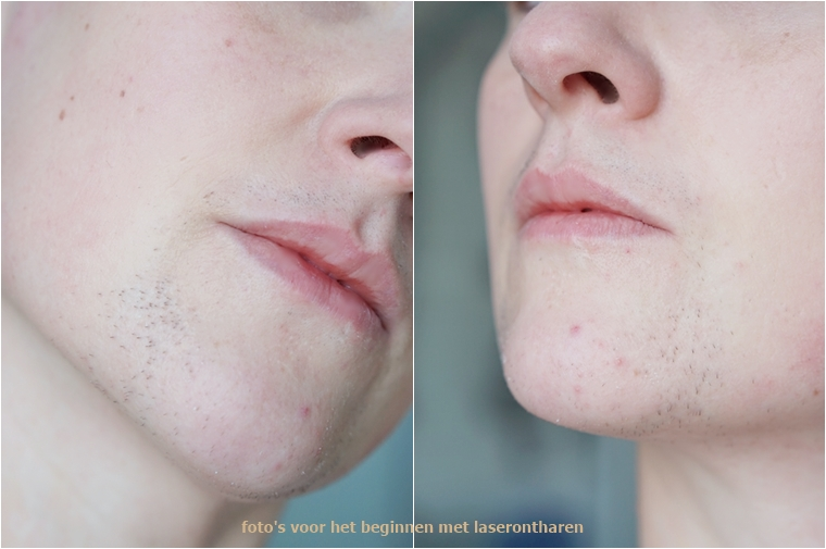 laserontharen gezicht ervaring