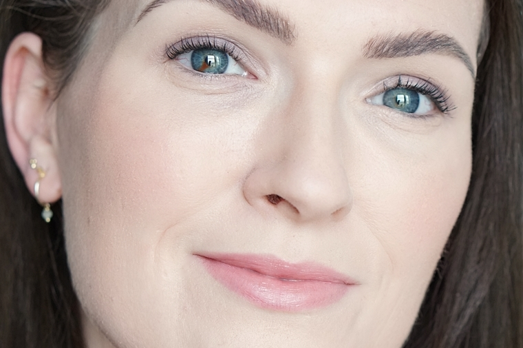 laserontharing gezicht ervaring Triaderm 3 - Personal | Een update over de laserontharing tegen overbeharing in mijn gezicht