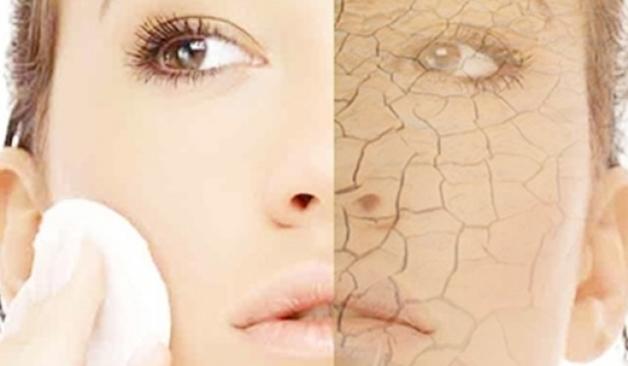 Huidtypes | De droge huid