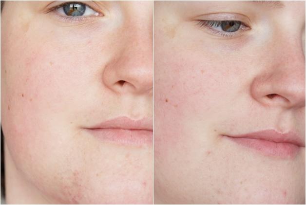 huid juni juli 2013 - Mijn skincare juli 2013