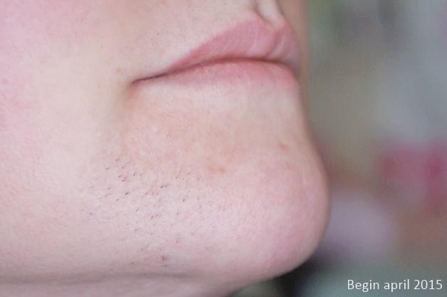overbeharing in het gezicht