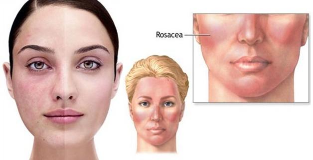 rosacea - Rosacea (uitleg & tips)
