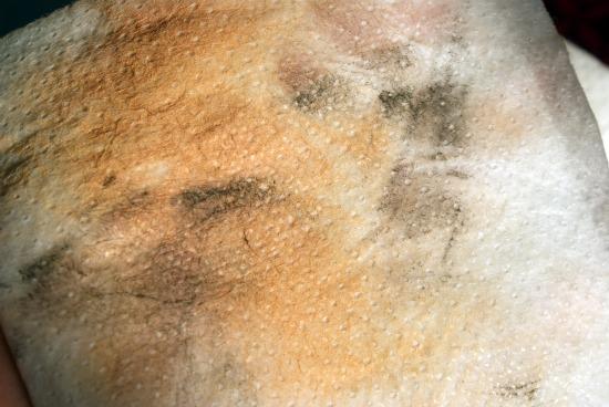 vanmanen3 - Van Manen okselpads & reinigingsdoekjes - foto's en review