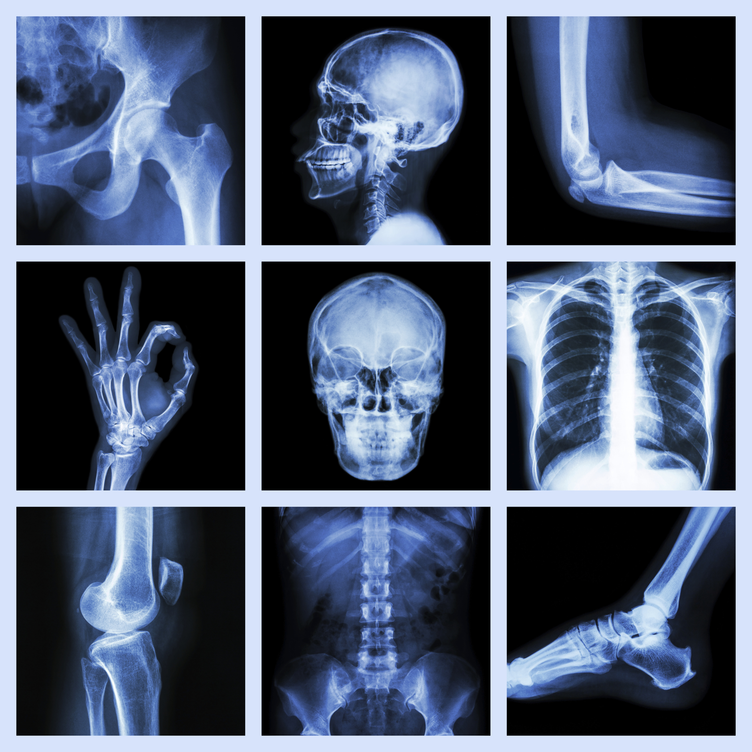 Cvcc Hosts Radiography Program Open House For Those