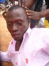 Faure Gnassingbe reprime les etudiants togolais03