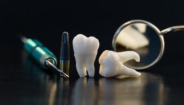 撞掉牙齒怎麼辦? - 康健雜誌