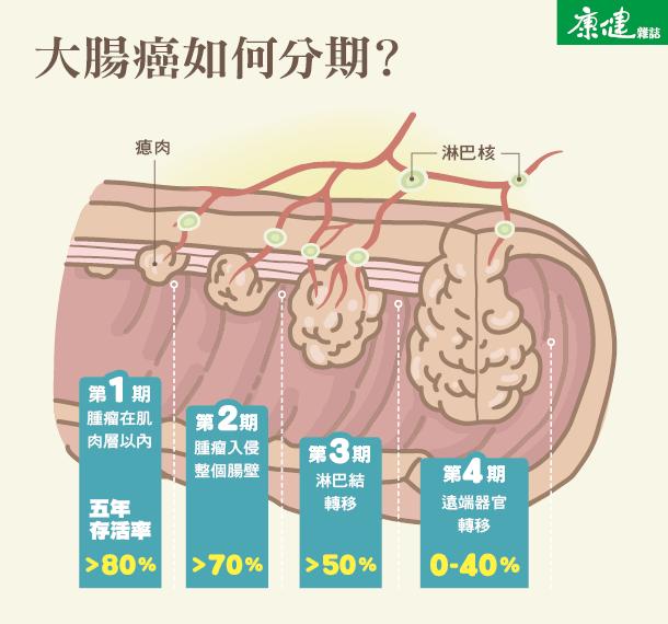 大腸癌1,2,3,4 期怎麼分? - 康健雜誌