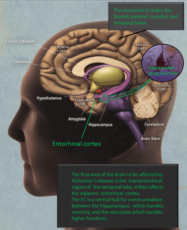 Alzheimers_entorhinal_cortex.PNG