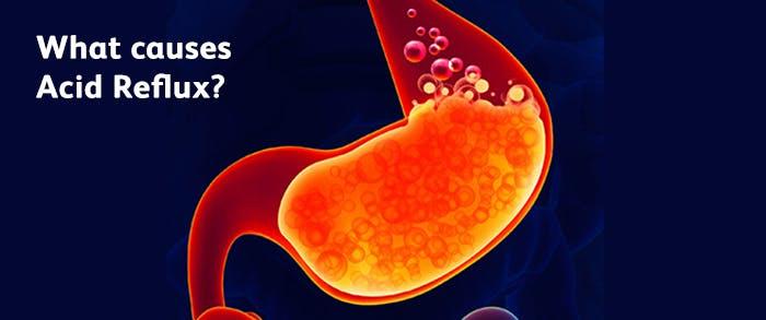 Image result for acid reflux