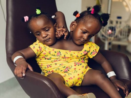 Zimbabwean Woman Gives Birth To Conjoined Twins
