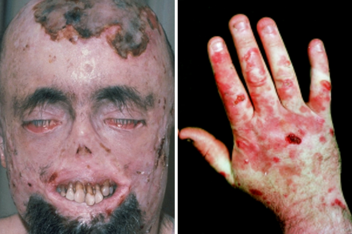 31 Bizarre and Shocking Medical Conditions  Page 28 of 32