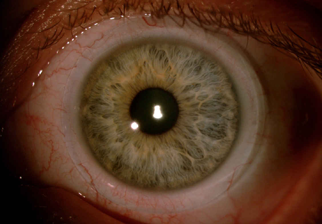Scleral lenses for increasing and changing the color of the eyes