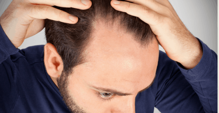 Best Hairstyles For Receding Hairline In 2021 Cyclops Brand