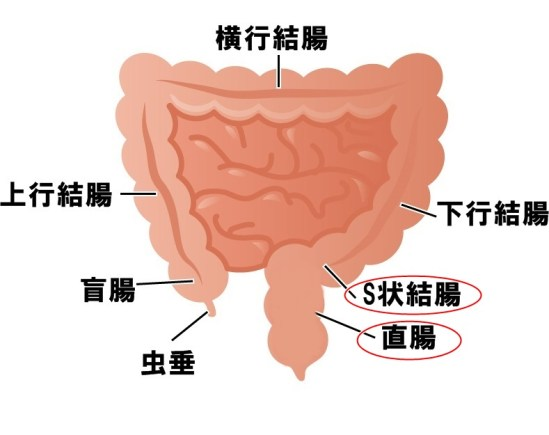 大腸癌 S状結腸 直腸