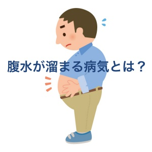 腹水とは?腹水がたまった時の症状と病気の原因について