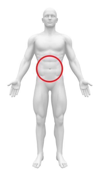 急性腹症 内臓動脈瘤破裂 腹部全体痛