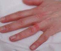 Sore ring finger