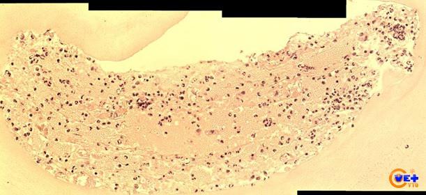 Клинический случай №4. Клеточный блок