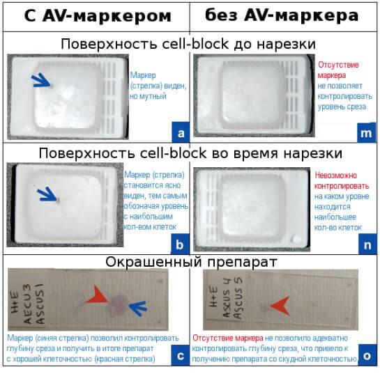 Пример клеточного блока (cell-block) с применением AV-маркера и без него