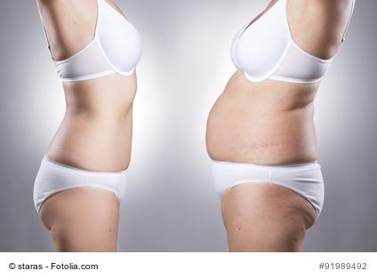 nachsorge vor und nach der fettabsaugung an bauch oberschenkel beine hufte knie oberarme kinn