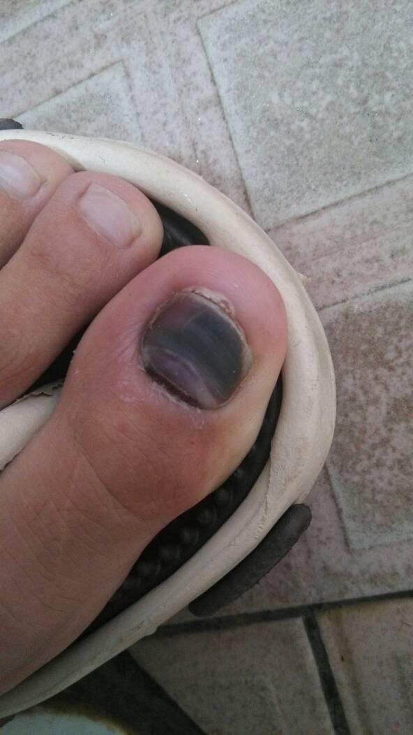 大腳趾頭指甲縫邊很痛-大腳趾頭旁邊的肉腫了,大腳趾頭指甲縫邊有膿,腳趾頭灰指甲圖片,腳拇指指甲邊按壓會 ...