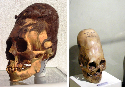 Are Paracas Elongated Skulls a New Species Aliens or a Hoax