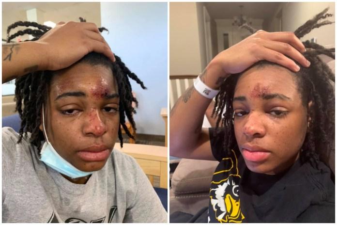 Jazz Evans injuries
