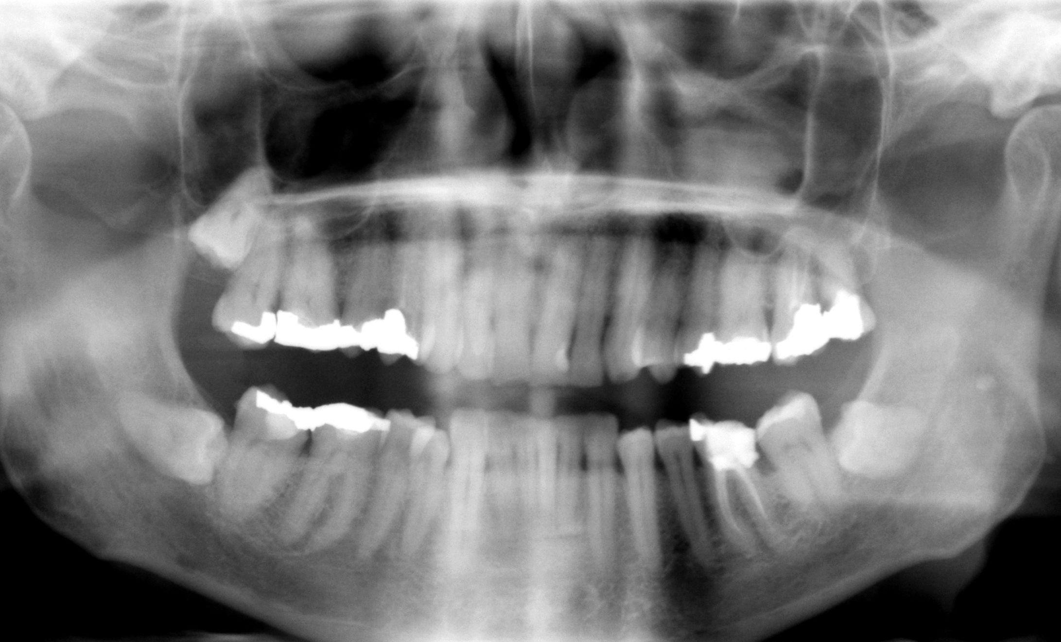 dental fillings heal teeth