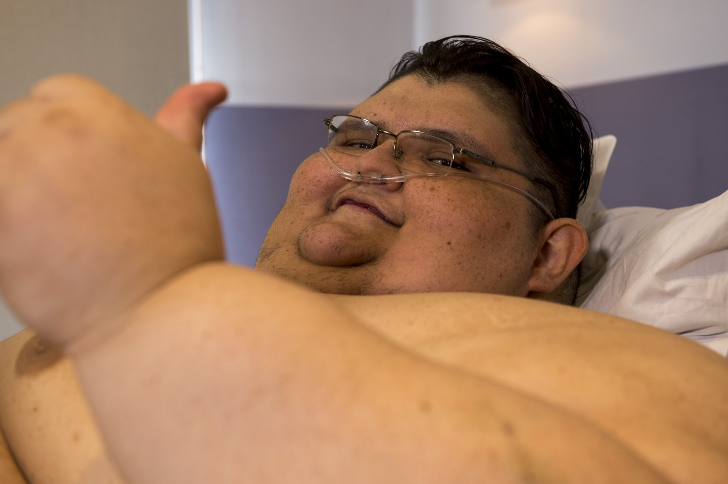 World S Quot Once Quot Heaviest Man Alive Loses Half His Body
