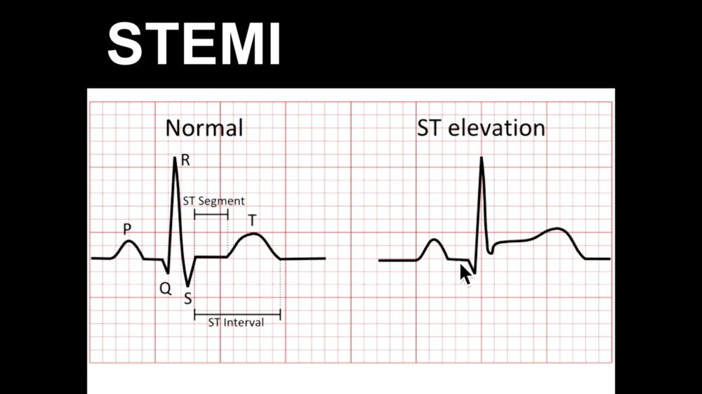 medium resolution of ecg course st elevation part 1