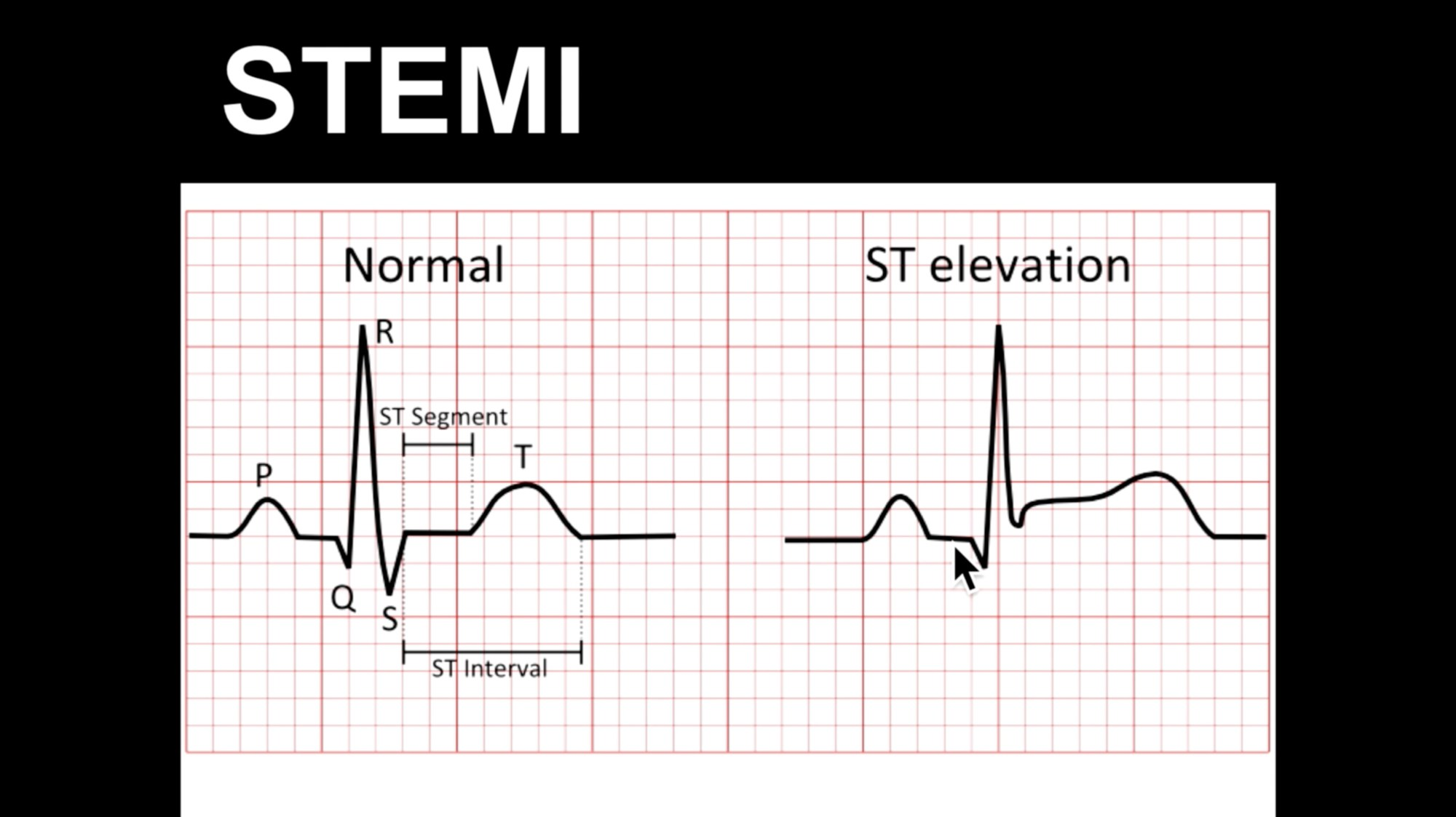 hight resolution of ecg course st elevation part 1