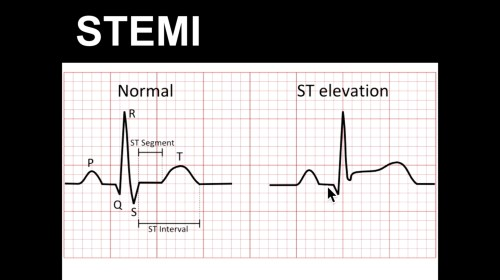small resolution of ecg course st elevation part 1