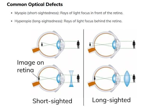 long and short sighted diagram lennox wiring diagrams the eye: anatomy, functioning, common defects. includes by mimi41 - teaching resources ...