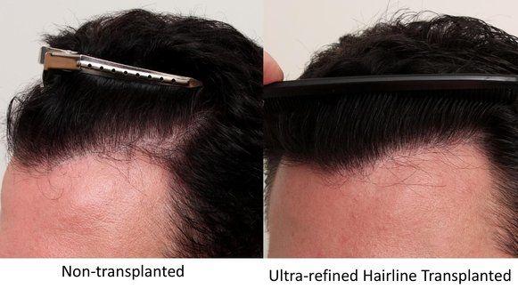 hairline design - true & dorin