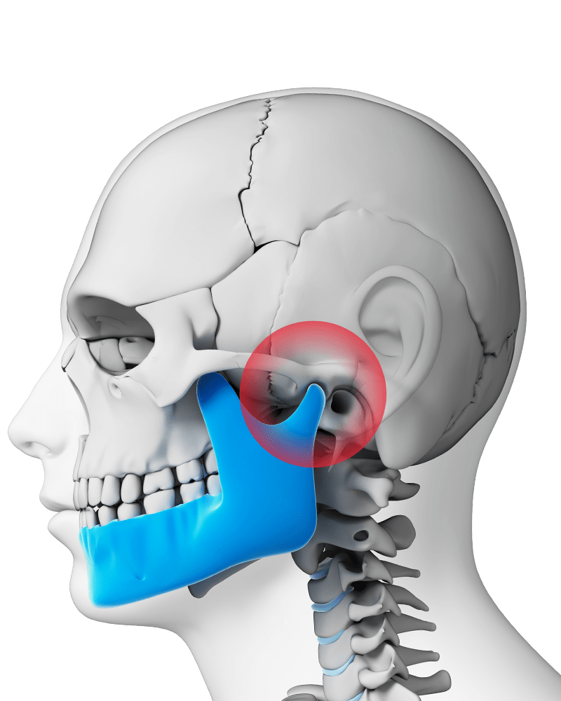 small resolution of illustration of skull with lower jaw in blue and red showing pain around joint
