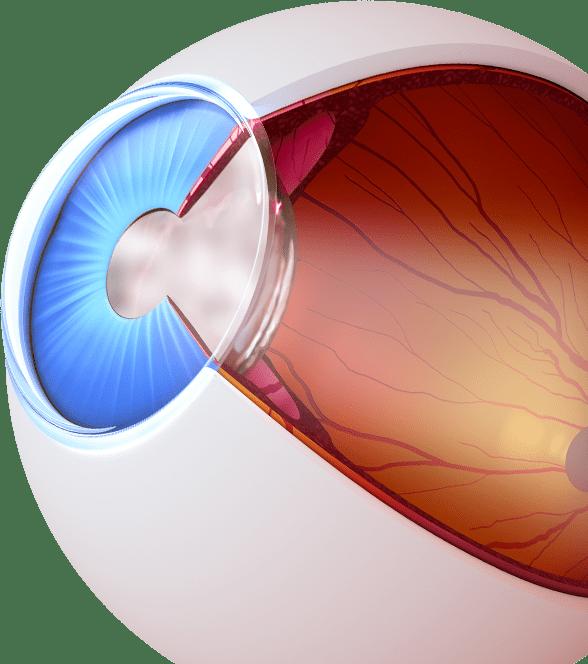Cataract Treatment - Leesburg FL - Fishman & Sheridan