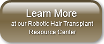 robotic hair transplants