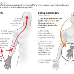 Hand Nerves Diagram Obd2a Ecu Wiring Prosthetic Recreates Feeling Of Cotton Bud Touch