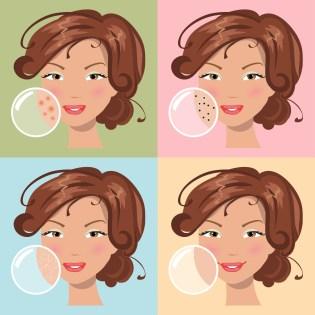 Different Skin Problems