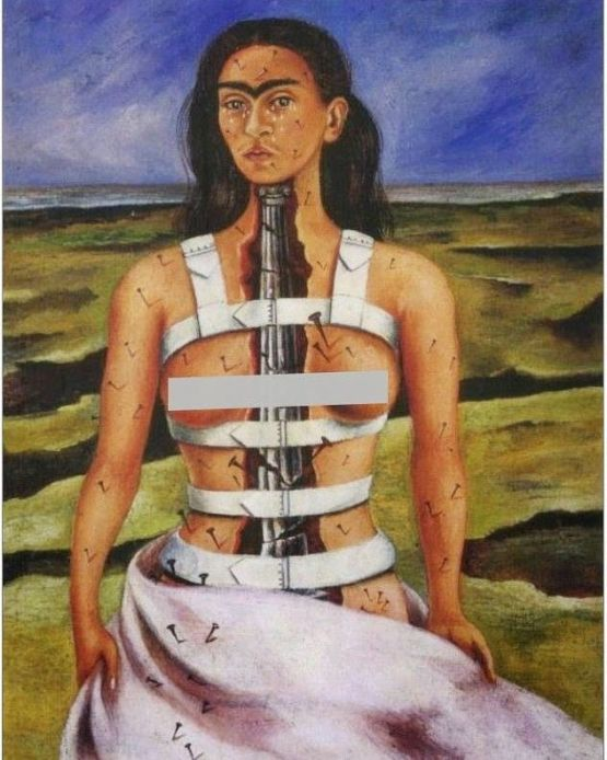 the self-portrait of Frida Kahlo where she depicts herself with a medical corset and needles stitching her left and right side of the body with a desolate place at the background