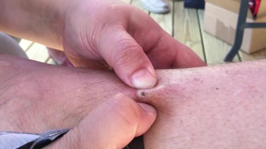 Da anni aveva un punto nero sulla gamba quando inizia a schiacciarlo non crede ai suoi occhi