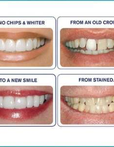 Actual results from before and after photos using dental veneers also guide on veneer prices risks  rh dentistsclinic
