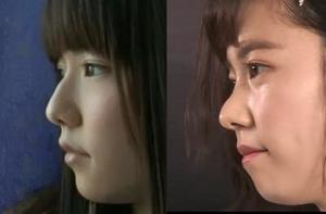 「島崎遥香 鼻」の画像検索結果