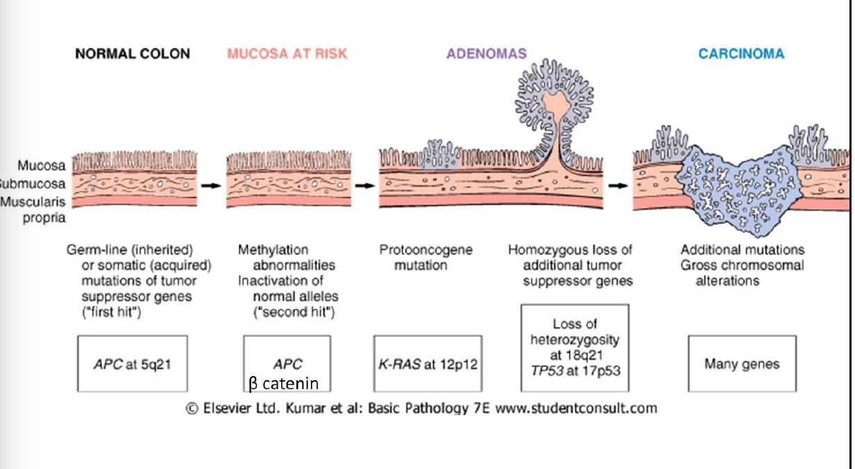 hight resolution of majority of colorectal carcinoma chromosomal truncation mutation apc colon mucosa mutation