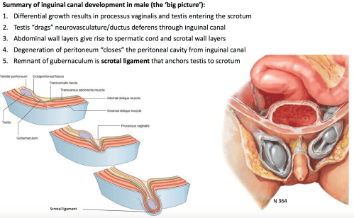 small resolution of differential growth results in processus vaginalis and testis entering the scrotum