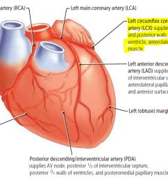 heart diagram rca [ 1099 x 817 Pixel ]