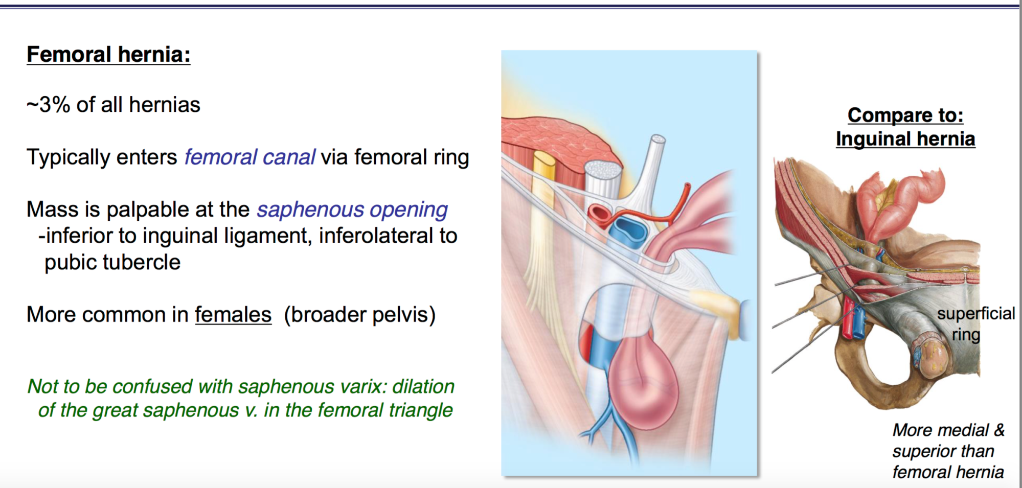 hight resolution of diagram of femoral hernia wiring diagram expert diagram femoral hernia