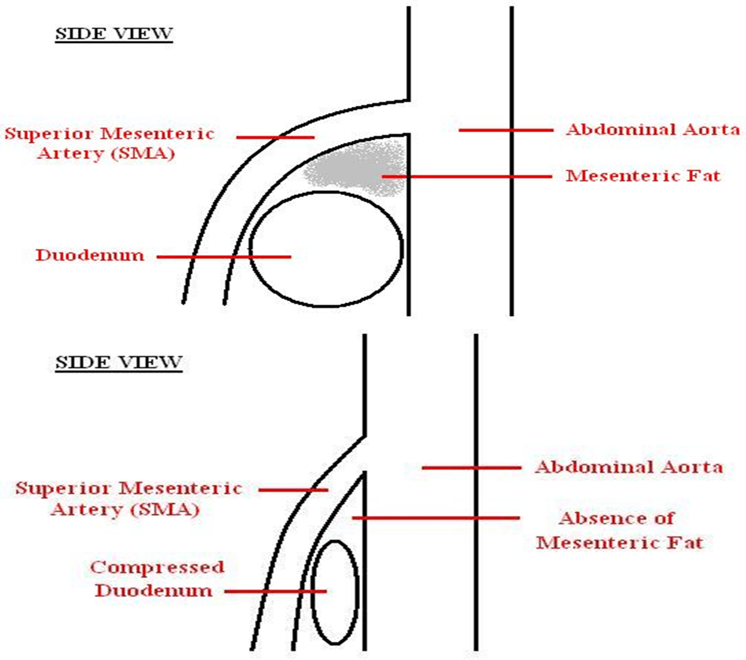 hight resolution of compression of the third part of the duodenum by the sma and abdominal aorta symptoms